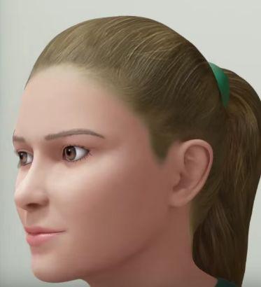 rhinoplasty nose surgery example